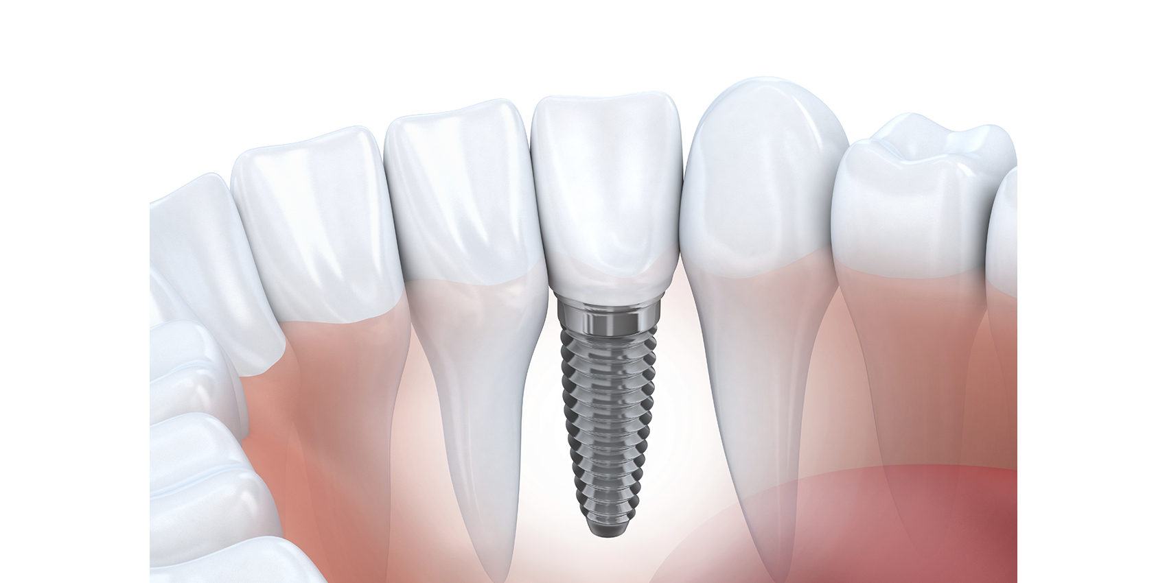 Implant dentaire : Un implant remarquable ?